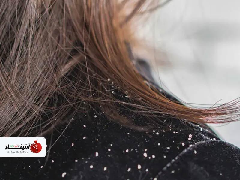 درمان شوره سر خشک در خانه با مواد طبیعی